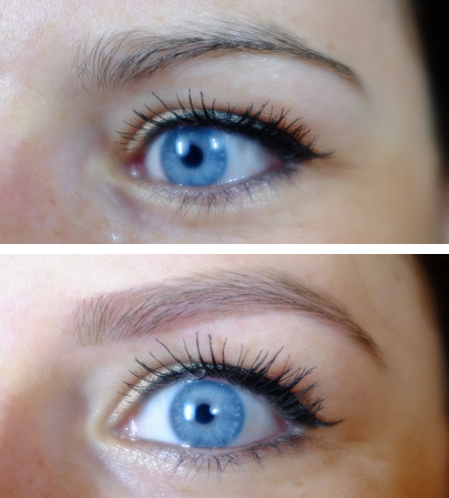 Avant / après oeil gauche